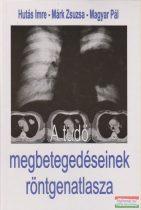 A tüdő megbetegedéseinek röntgenatlasza